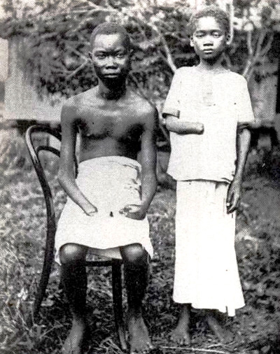 Congolese whose hands were chopped off by colonialists
